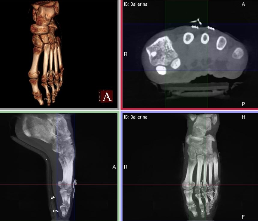 Standing CT Imaging En Pointe